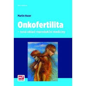 Onkofertilita – nová oblast reprodukční medicíny - Martin Huser