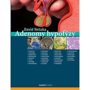Adenomy hypofýzy - David Netuka