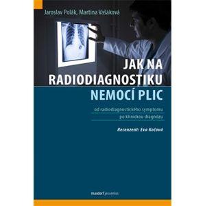 Jak na radiodiagnostiku nemocí plic - Jaroslav Polák